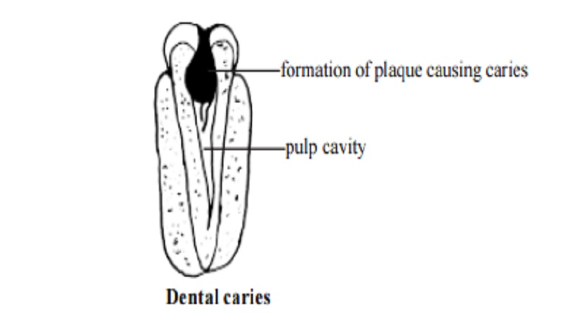 Dental Caries (Tooth decay) : Symptoms, Root Canal Treatment